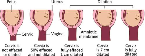 Pôrod, krčok maternice